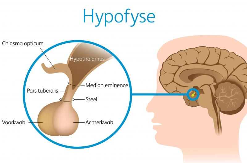 hypofese